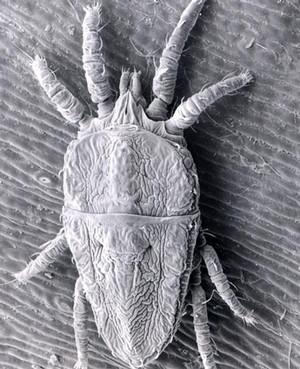 Микроскопический клещ с увеличением
